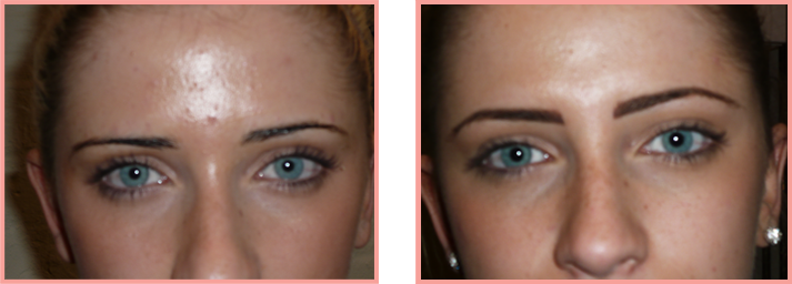 brows-before-after