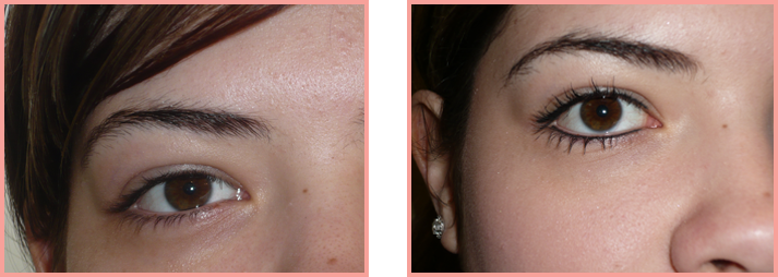 eyes-before-after
